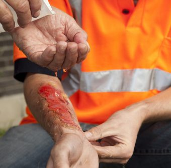 How to ensure first aid compliance in the workplace